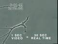 Footage of Mercury Withering Neuron by Univ of Calgary